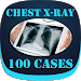 Download Interpret Chest X-Ray With 100 Cases 2.0 APK